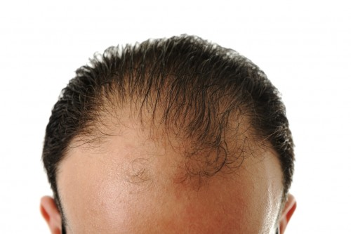 Haartransplantation in Hannover | Ursachen für Haarausfall und Behandlung