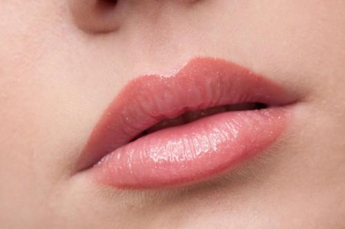 Lippenvergrößerung in Hannover | Lippen aufspritzen mit Hyaluronsäure