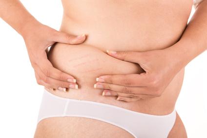 Haut abnehmen überschüssige nach Straffe Haut:
